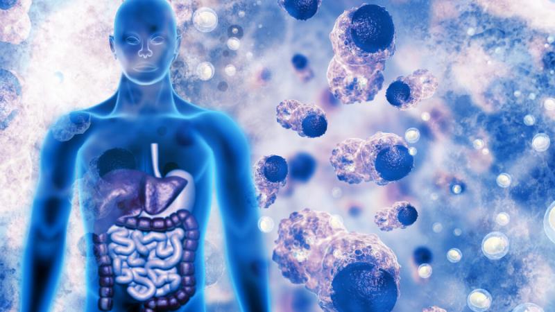 Bowel cancer blog image
